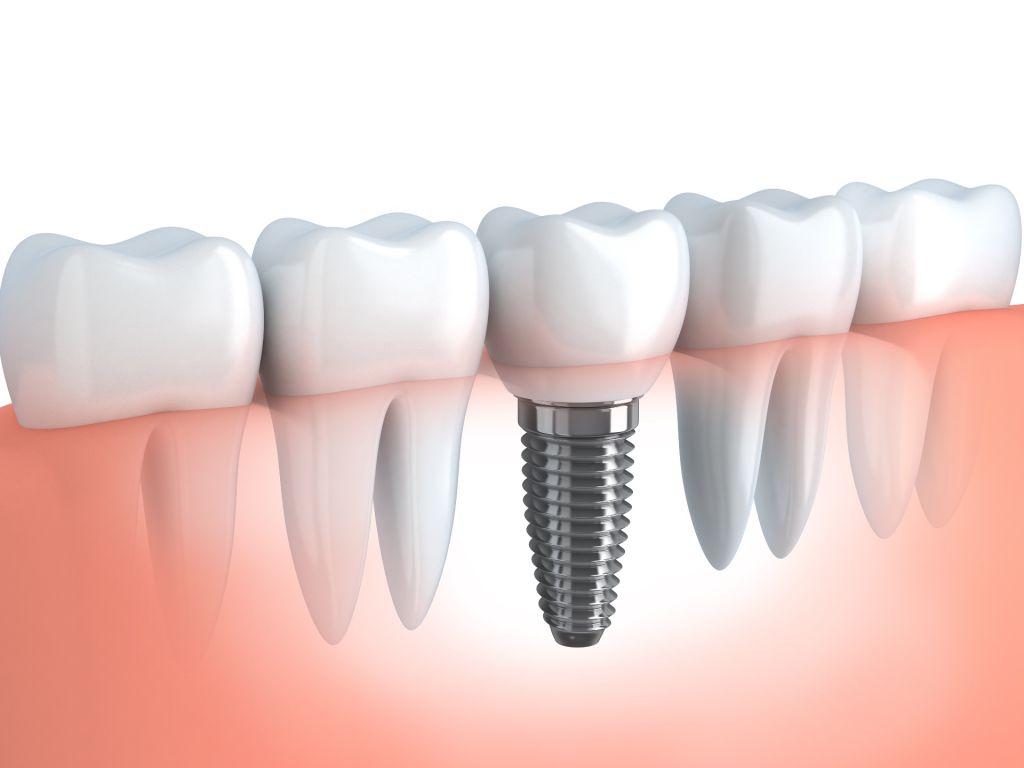 Implantologie Implantat eingeschraubt shutterstock_156787064