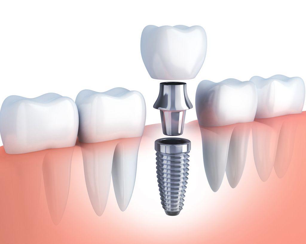Implantologie shutterstock_567400411 Vlad Kochelaevskiy